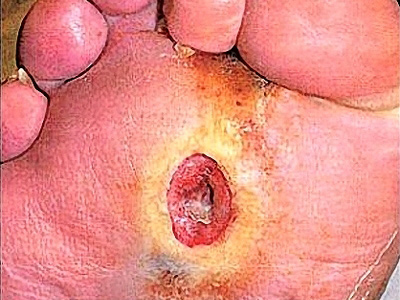 Loét chân do tiểu đường dễ tử vong