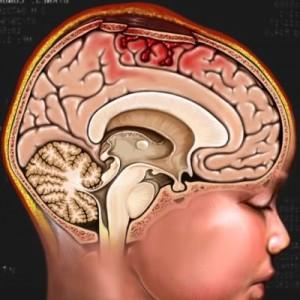 Chữa bệnh u não