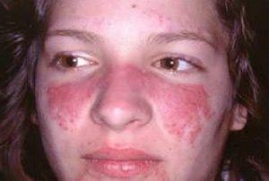 Chế độ ăn cho bệnh lupus ban đỏ
