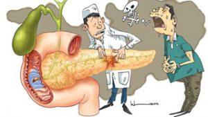 Béo phì tăng nguy cơ tử vong của bệnh ung thư tuyến tụy