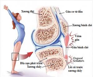 Liệu pháp gen điều trị chấn thương gân
