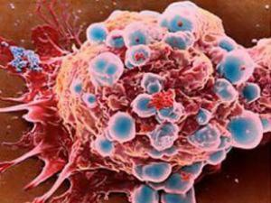 Kháng thể tự miễn chống lại tế bào ung thư