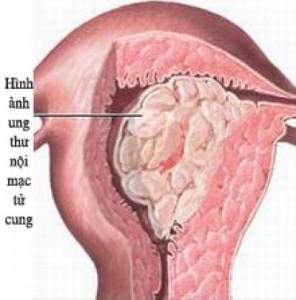 Ung thư nội mạc tử cung